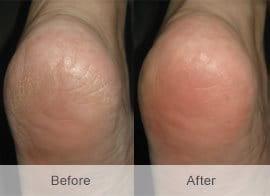 Hansaplast FOOT EXPERT Κρέμα ανάπλασης ποδιών, για ξηρό δέρμα με 10% URIA,100 ml + ΔΩΡΟ Αποσμητικό Spray Ποδιών -2